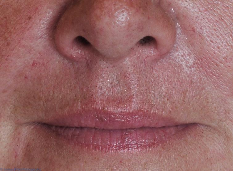 More about Facial Enhancement
