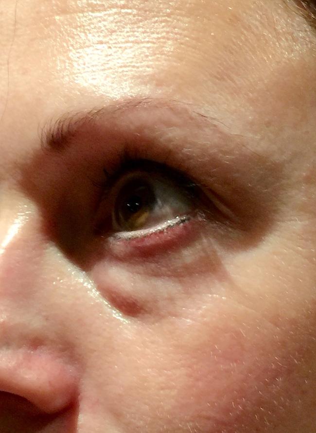 Facial cosmetic enhancement consider